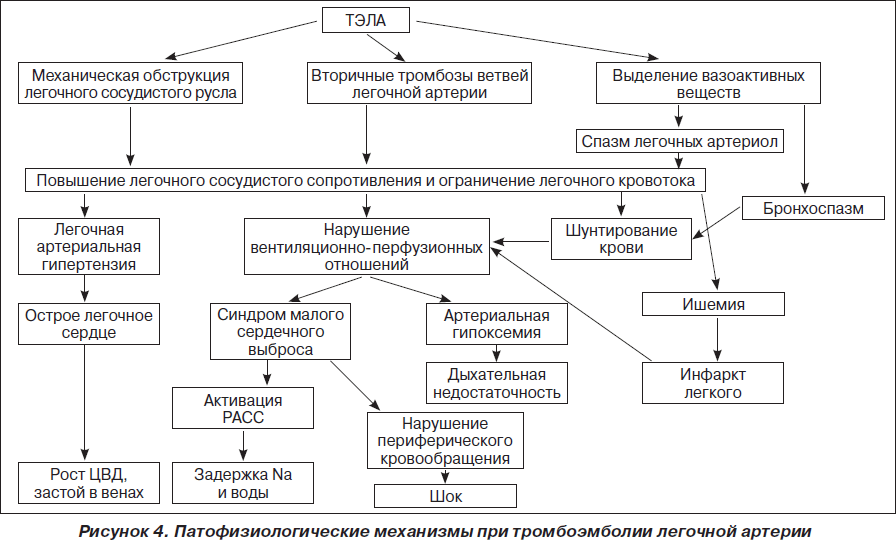 Тромбоэмболия легочной