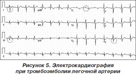 Тромбоэмболия легочной артерии: алгоритмы диагностики и лечения ...